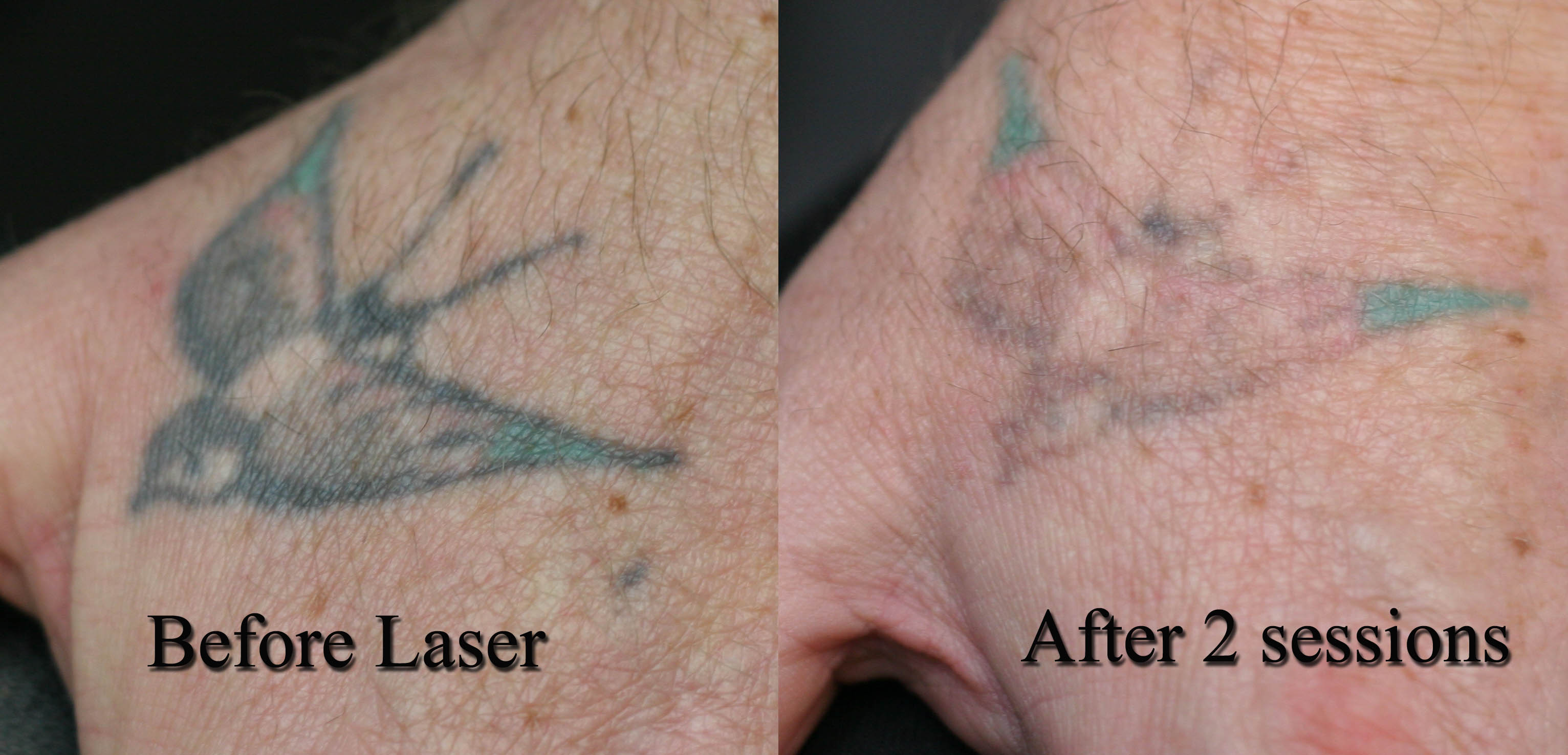 Tattoo Removal Cream Wiki further Top Essential Oils For Mole Removal Pain Lorpur   fjent as well Sciblogs   Is there such a thing as tattoo removal cream  or is it in addition Petunia seeds germinate in 5 to 15 days  Description from en furthermore Permanent Tattoo Removal  Tattoo Removal in Patna   View Cost as well Permanent makeup   Wikipedia likewise Permanent makeup   Wikipedia as well 3 Easy Ways to Remove Permanent Marker from the Skin   wikiHow furthermore Tattoo removal – HelpFullHanna  Tips Tricks and Info additionally Tattoo removal Ballarat   top laser tattoo removal for you moreover 44 best images about Tattoo Removal on Pinterest   Before and. on tattoo removal cream wiki